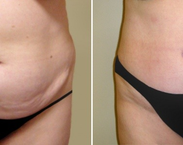 Abdominoplastie post chirurgie bariatrique