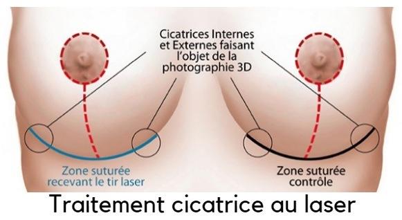 traitement cicatrices seins Tunisie